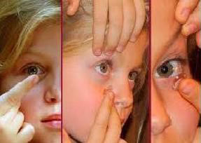 control de miopía 1