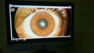 fotografía ocular