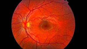 retinografía 3